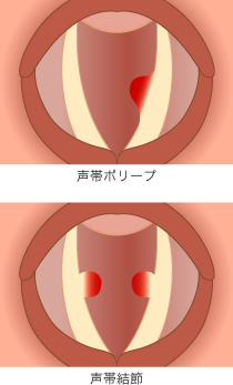 throat_2